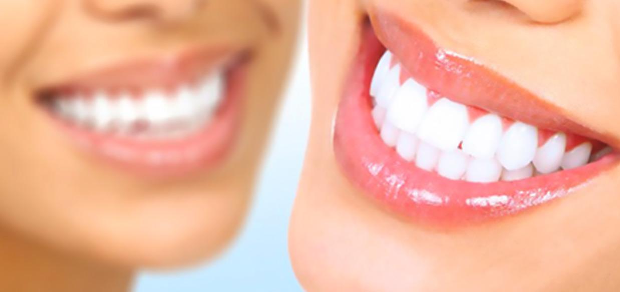 nostri-sorrisi-odontoiatrici